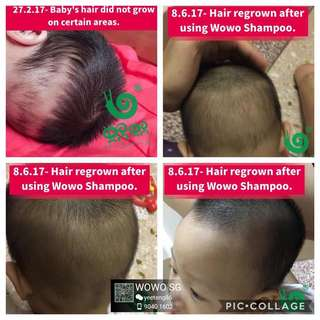 Hair growth for all ages! Even babies can use.