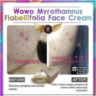 Myrothamnus Flabellifolia Face Cream