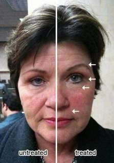 Inatant and affordable facelift