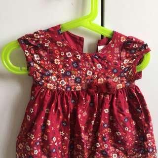 Baby dresses 👗