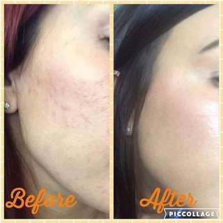 Diamond Peel 👉 Polishing Peel remove dead skin. Try out!!