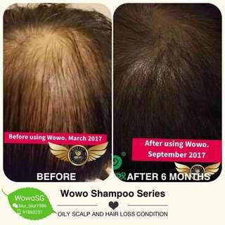 Wowo Hair Loss Shampoo