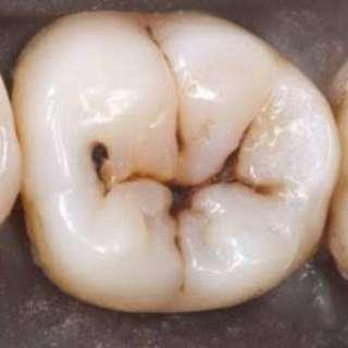 Free Pasta sa Bagang (tooth restoration)