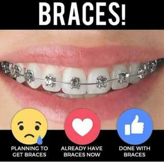 Braces and more services!