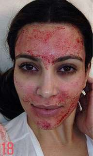 Micro needling Special for $150.00 reg. $260.00