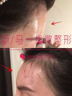 Filler forehead