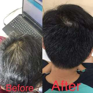 Amazing Hair Gain Program