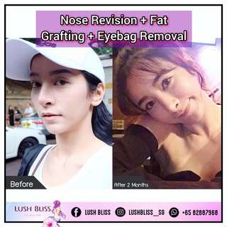 Nose Revision + Face Fat Grafting + Eyebag Removal