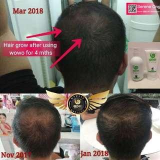 Male Hair Loss Pattern / Hair Thinning / Hair Loss