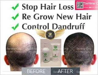 Male pattern hair loss / Hair growth