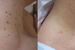 Remove skin tag Before and after