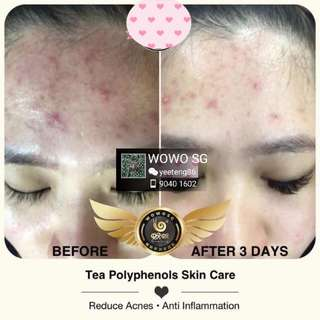 Wowo Skin care series