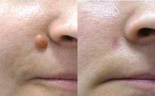 Mole laser removal $25.00