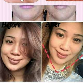 Face slimming product