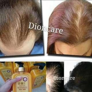 Hair regrowth shampoo