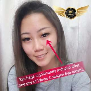 Wowo Collagen Eye Cream Massager