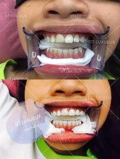 Nano Teeth Whitening