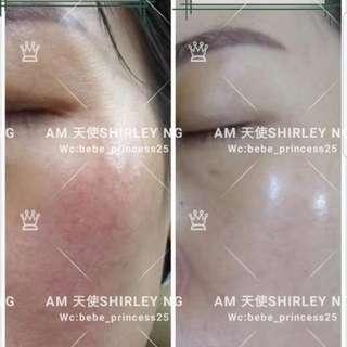 Am professional skin care