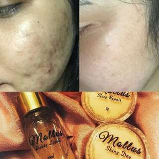 (INSTOCKS AVAIL) Authentic Mollus MySkinHope Skincare set (Magic Beauty Box 4 in 1) & Mollus Skin Serum Foundation (ONLY VIA MAILING)
