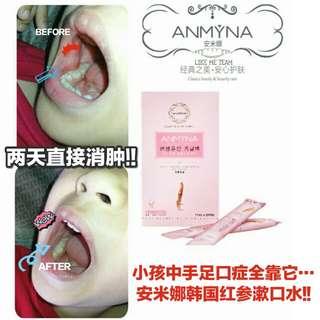 Anmyna Red Ginseng Mouthwash