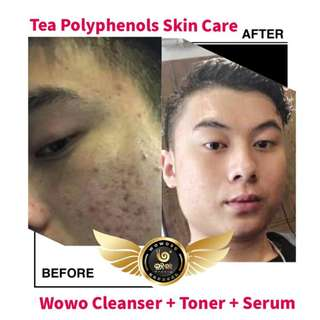 Wowo Basic Cleansing Set (HSA APPROVED)