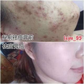 Natural Herbal Acne Remover Cream 天然草本秘制祛痘膏
