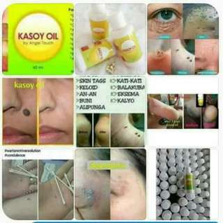Kasoy Oil by Angel Touch