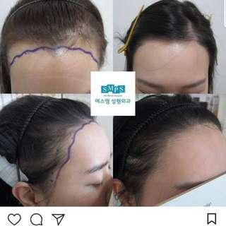 Cosmetic Hair Transplant Surgery