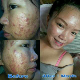 For Acne and Pimples