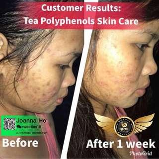 Face Skin series
