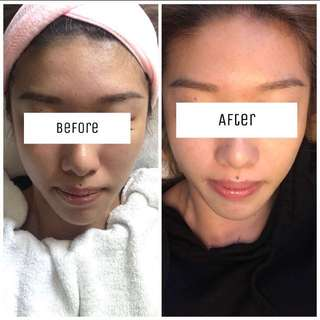 BB shine treatment first timer $48 (micro needling therapy(nano needle** painless**) Call/text : 87482491