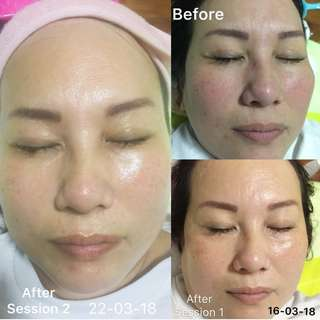 BB Glow Treatment MTS Booster Whitening
