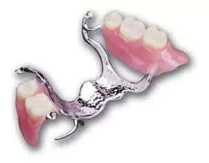 REMOVABLE PARTIAL DENTURE / POSTISO