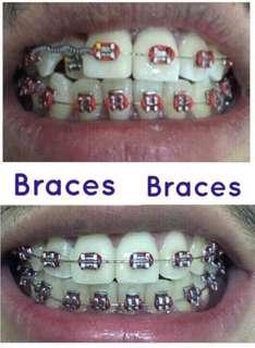Dental Braces and Fixed Bridges