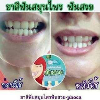 Pocha teeth whitening bangkok