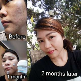 Booster mask over night 10ml.