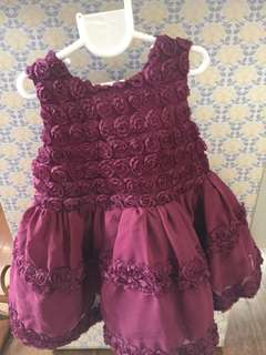 Nanette Lapore Baby Dress