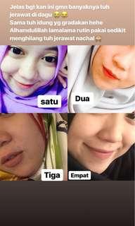 Whitening Facial Mask