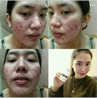 ANTI PIMPLES,ACNE,BLEMISHES AND WHITENING!