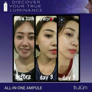 Trulum Skincare 15ml Instant Glowing
