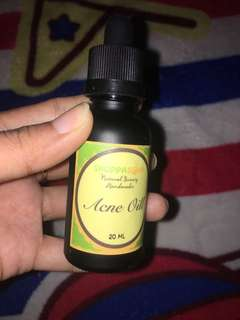 Shoppasoap acne oil