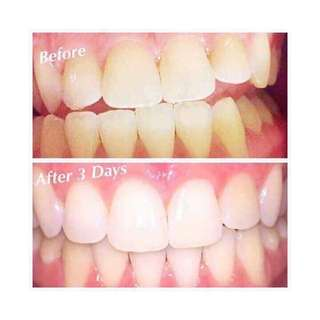 Ap24 whitening toothpaste (pm for more info)