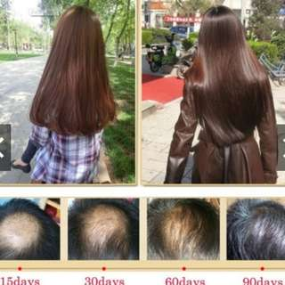 Serum penumbuh rambut dan penghenti Rambut rontok