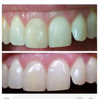 AP 24 whitening toothpaste are available