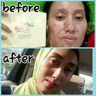 Collagen Skin Care Nasa (COSKIN) /Agen Nasa Bekasi 081381429926