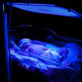 Blue Phototherapy Light for Jaundice Babies