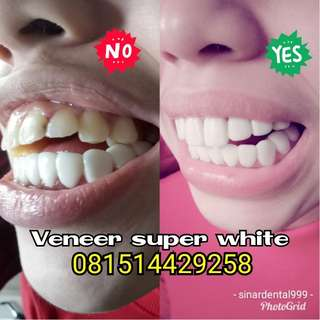 Veneer super white plus gigi kelinci