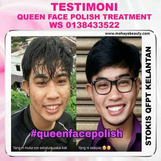 TESTIMONI QUEEN FACE POLISH
