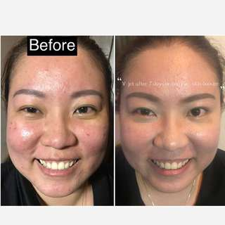 Skin booster without needles