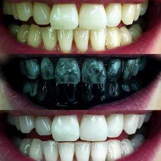 Authentic teeth whitening charcoal